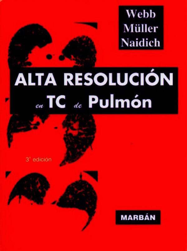 Alta Resolución en TC de pulmón en LALEO